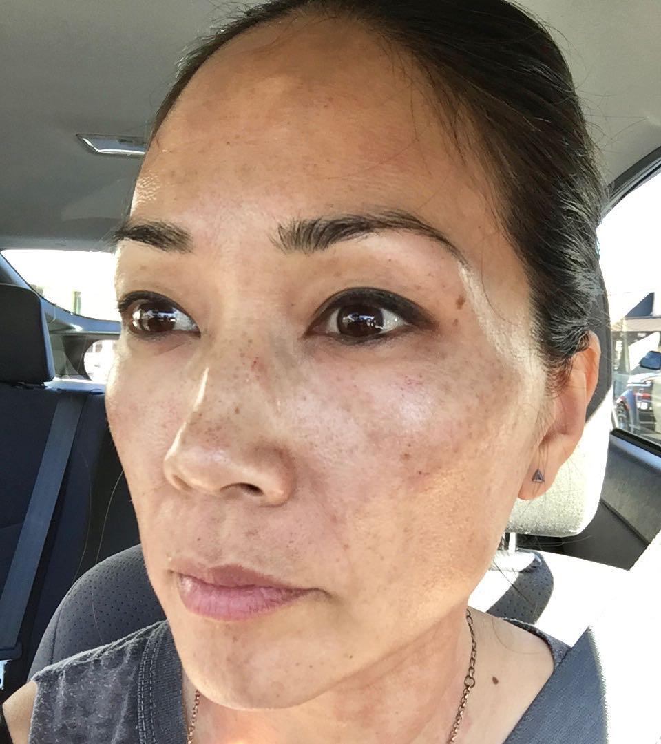Diane Mizota 15 minutes after the procedure